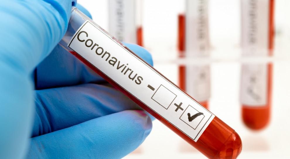 Kolejny przypadek koronawirusa w grupie KGHM