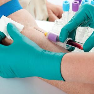 Związkowcy i medycy apelują do ozdrowieńców o oddawanie krwi