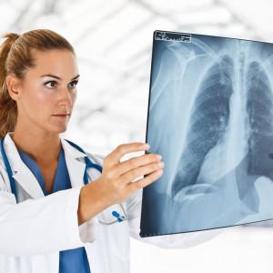 NFZ wypłacił prawie 18 mln zł na dodatkowe świadczenie dla medyków